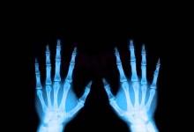 Ajude a AMI com radiografias usadas