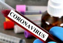 DGS diz que concelhos de Vila do Conde e da Póvoa de Varzim mantêm 431 casos de Covid-19