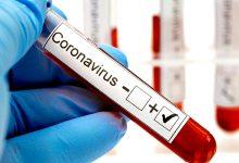 Póvoa de Varzim mantém 143 casos de Covid-19