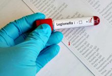 Novo surto de Legionella já causou sete mortes em Vila do Conde, Póvoa de Varzim e Matosinhos