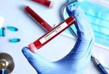 Póvoa de Varzim mantém os mesmos 30 casos de infetados por Covid-19 há 3 dias consecutivos