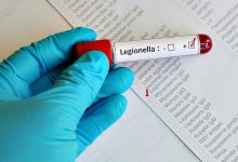 Câmara de Vila do Conde diz que há casos de Legionella no município e nos concelhos vizinhos